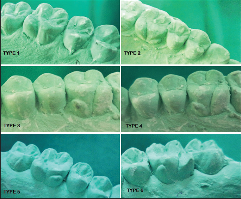 Figure 5: Maxillary first molar exhibiting various grades of Carabelli's trait in the study sample