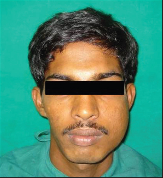 Figure 1: Extraoral facial asymmetry on left side of face