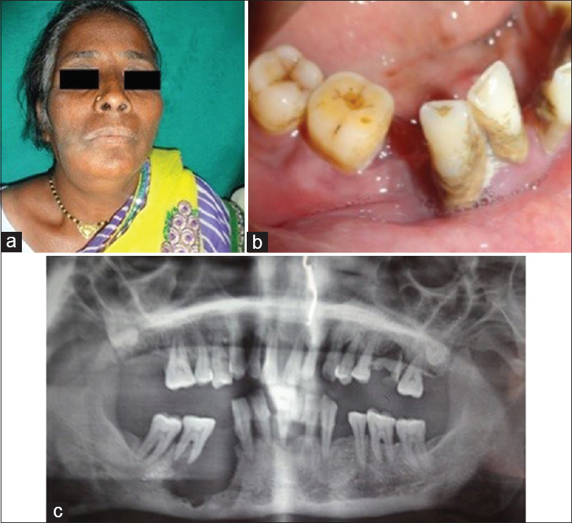 Figure 1: Clinical. (a) A 55-year-old female with swelling in the right parasymphysis region. (b) Swelling extending from 43 to 46 region. H/O extraction of 44 and 45 2 years ago. (c) Ill-defined radiolucency extending from 43 to mesial aspect of 47 causing thinning of lower border of the mandible