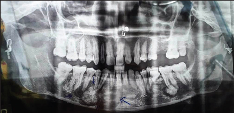 Figure 3: Orthopantomograph of the patient showing multiple bilateral radiopaque sclerotic lesions surrounded by peripheral radiolucent rim apical to majority of the mandibular teeth