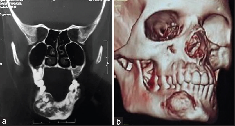 Figure 4: (a) Computed tomography scan image showing expansile lytic lesion with hyperdense matrix and intact cortex involving almost whole of the mandible. (b) Three-dimensional reconstruction computed tomography image of the patient showing bony overgrowth in the right mandibular parasymphysis region