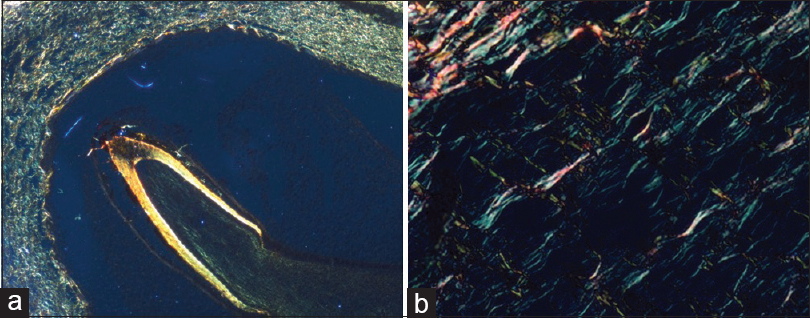Figure 4: (a) Photomicrography of picrosirius red-stained section of tooth germ papillae (×4). (b) Tooth germ papillae showing collagen fibers predominantly greenish birefringence (×40)