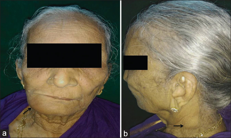 Figure 1: (a) Extraoral image presenting right facial asymmetry. (b) Left profile view exhibiting detectable cervical lymph node enlargement