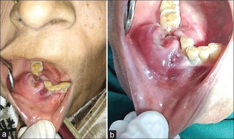 Figure 2: (a) Intraoral examination of the lesion; (b) well-defined intraoral swelling obliterating the buccal, labial and lingual vestibules in the region of nonhealed extraction sockets of 43–45