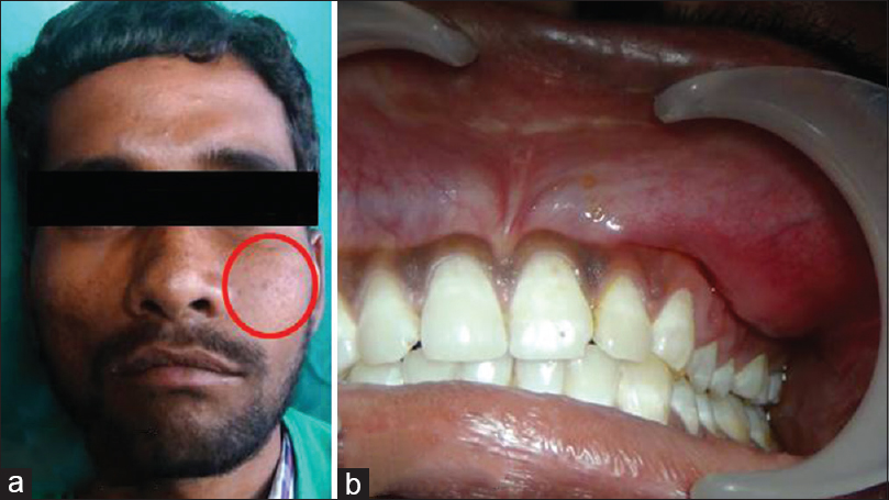 Figure 1: (a) Clinical image showing dome shaped swelling on the left side of the face. (b) Intraoral image showing left vestibular obliteration
