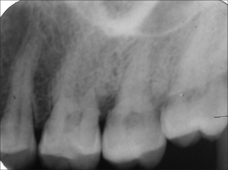 Figure 2: Intraoral radiograph on 25, 26 and 27 regions showing no significant periapical pathology