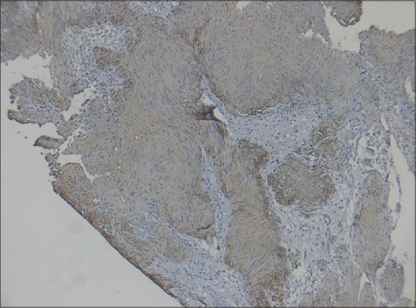 Figure 8: Antoni A and Antoni B areas showing diffuse S100 positivity (immunostain-S100)