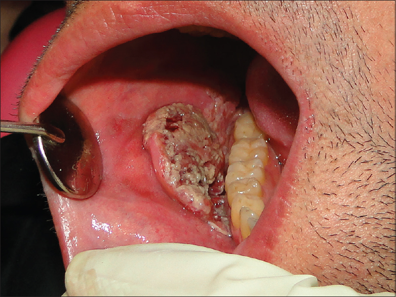 Figure 1: A nontender mass with a verruciform surface was present on the right buccal mucosa. The lesion had a soft-to-firm consistency