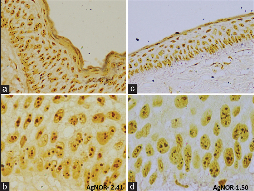 Figure 1: AgNOR staining in recurrent odontogenic keratocyst (a and b) and nonrecurrent odontogenic keratocyst (c and d)