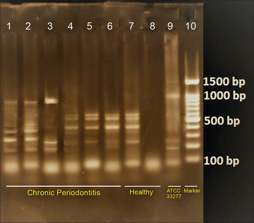 Figure 1: Photograph showing arbitrarily primed-polymerase chain reaction with different banding patterns determining the heterogeneity of <i>Porphyromonas gingivalis</i> in healthy and chronic periodontitis (except band eight all other samples are positive for <i>Porphyromonas gingivalis</i>)
