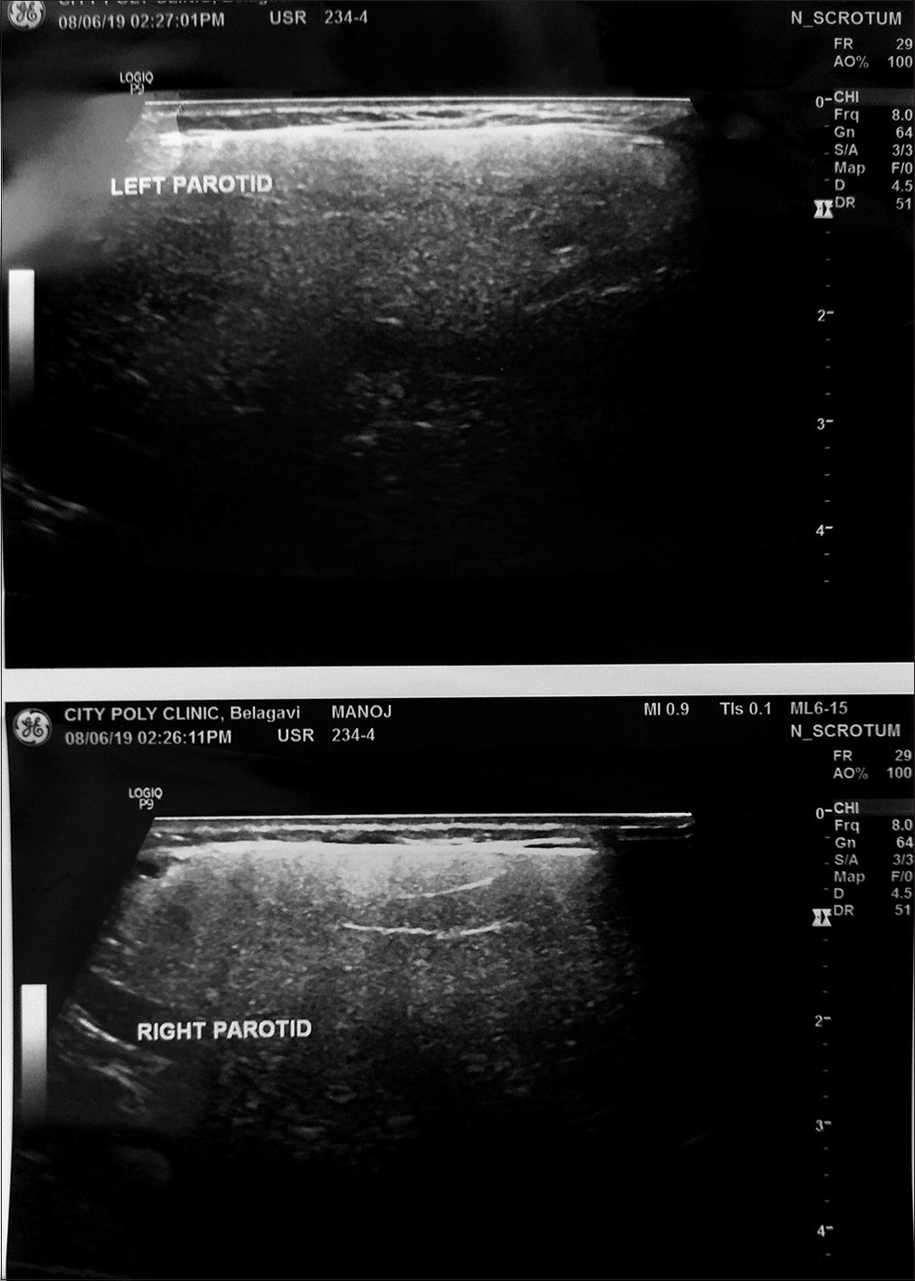 Figure 1: Photograph showing ultrasonography image with no abnormality detected except for a slight swelling in the parotid gland