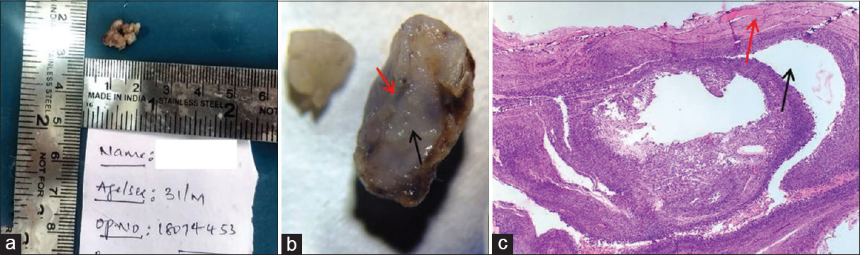 Figure 5: (a) Gross picture under naked eye showing capsule with lumen filled with mucous material. (b) Stereomicroscopic image showing distinct brownish white outer surface (red arrow) and lumen filled with mucoid-type material (black arrow). (c) H&E-stained section (×4) shows compressed granulation tissue (red arrow) over mucin pooled spaces (black arrow)