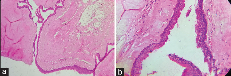 Figure 5: Histological findings. (a) H&E stained section (×10 view): The cyst wall is lined with parakeratinized epithelium with a corrugated surface. (b). H&E stained section (×40 view). Note the 5–6 cell layer epithelium with palisading of the basal cell layer