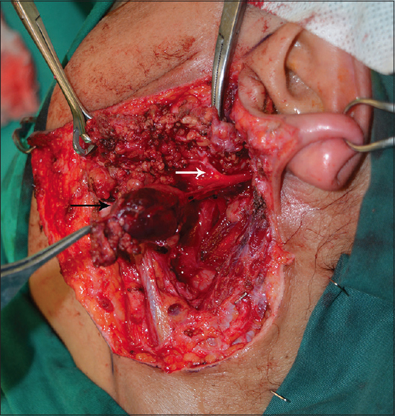 Figure 2: Intraoperative photograph of the tumor (black arrow). The facial nerve was preserved (white arrow)